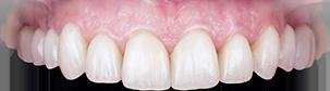 Ce este estetica dentară?