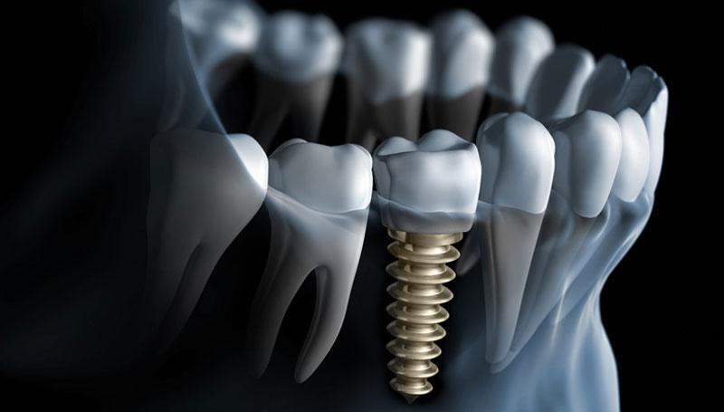 Top 7 riscuri ale implantului dentar efectuat greșit