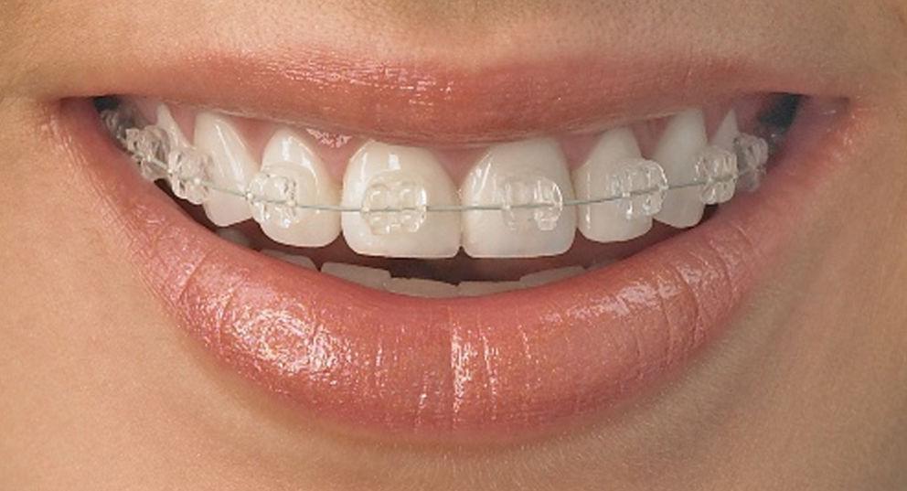 Aparat dentar ceramic – Avantaje și dezavantaje