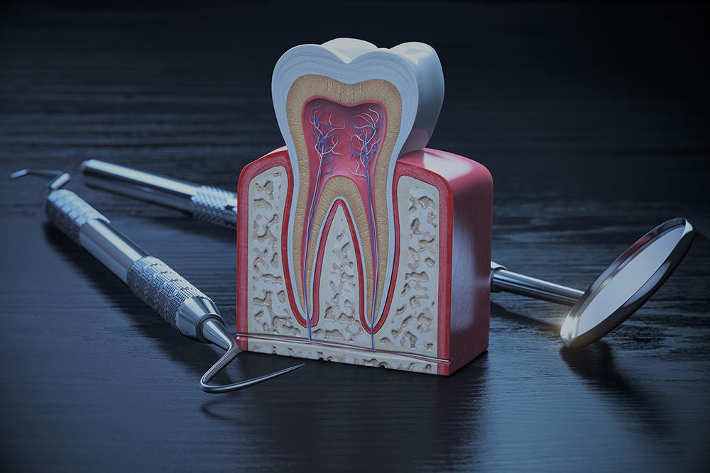 Pulpita dentară: ce este, simptome, cauze și metode de tratament