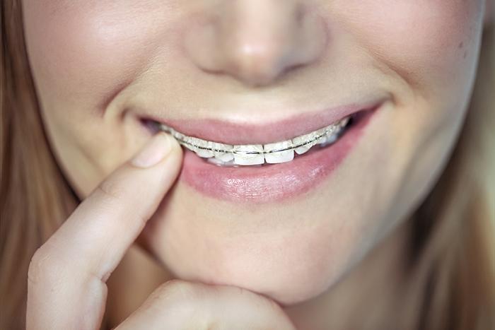 Întrebări frecvente despre urgențe ortodontice în contextul Covid-19