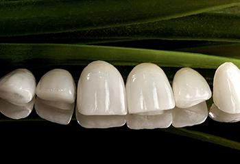Tratamente de estetică dentară