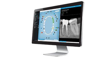 Când este recomandat tratamentul cu implant dentar?