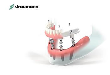 Tipuri de implant dentar