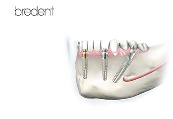 Sisteme de implanturi dedicate pacienților care suferă de edentație totală: